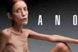 С итальянских улиц уберут изображения больной анорексией